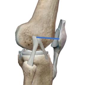 外側膝蓋大腿靱帯(LPFL)