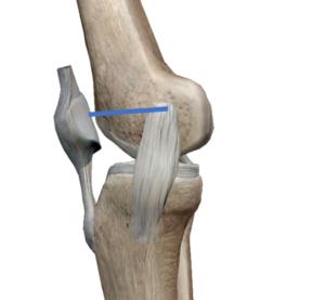 内側膝蓋大腿靱帯(MPFL)