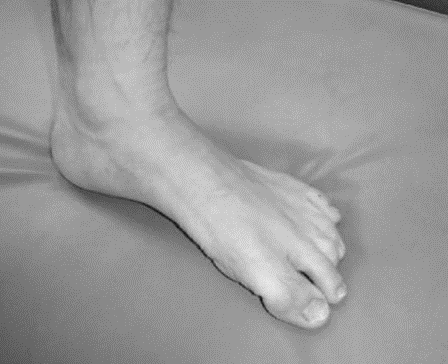 足底アーチ