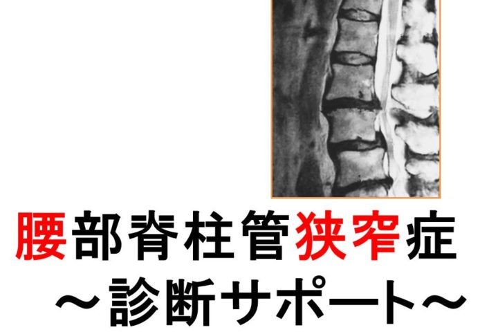 腰部脊柱管狭窄症